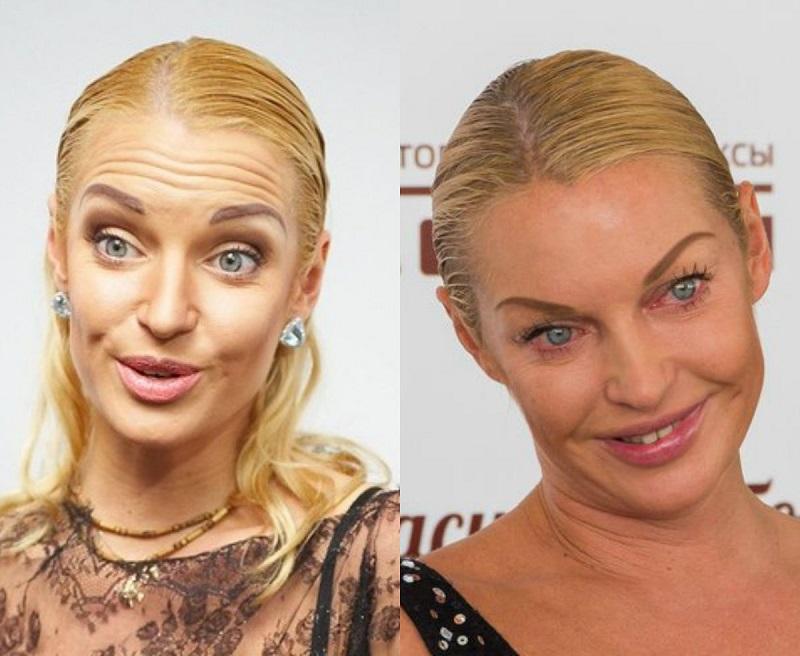 Фото, які зірки ненавидять: Мадонна з ботоксом та груди-втікачі Лоліти - фото 3