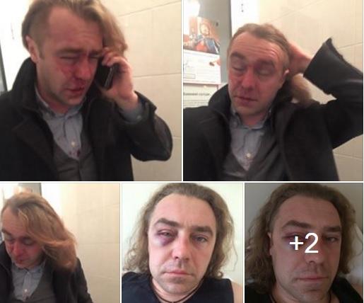 """Як Мірошниченко вбиває своїми синцями імідж """"Свободи"""" - фото 1"""