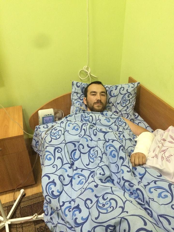 Затриманому російському ГРУшнику українські лікарі врятували ногу (ФОТО) - фото 1