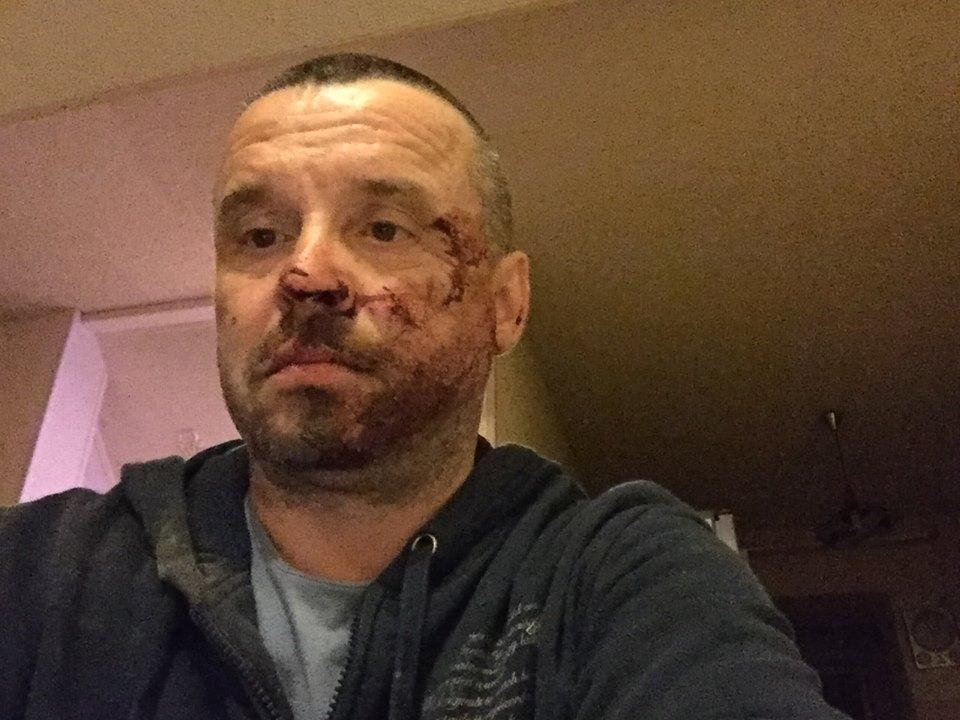 """У Маріуполі побили лідера донецької """"Батьківщини"""" - фото 1"""
