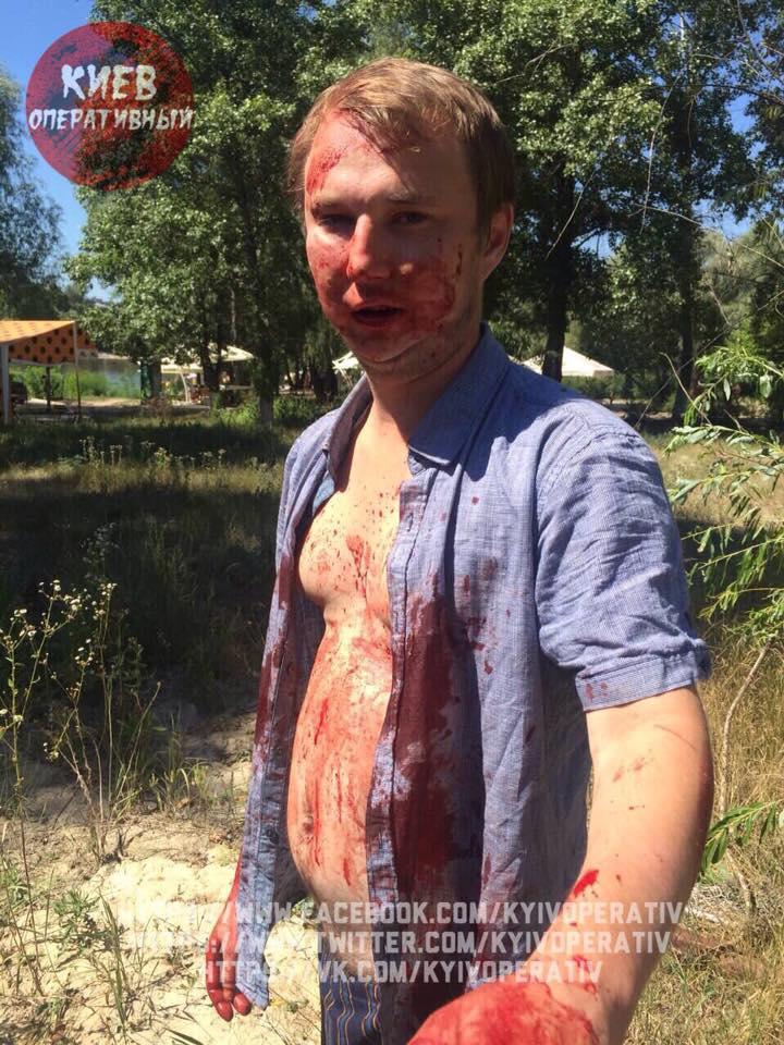 П'яний син київського депутата влаштував криваву ДТП (ФОТО) - фото 5