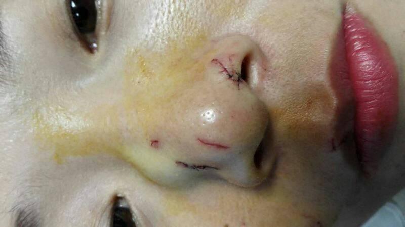 У Таїланді пітон вкусив за ніс китайську туристку, яка лізла до нього цілуватися - фото 1