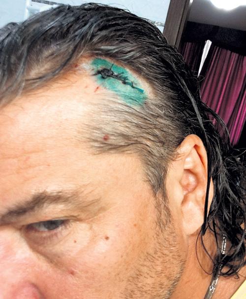 В Одесі російського співака побили пляшкою горілки - фото 1