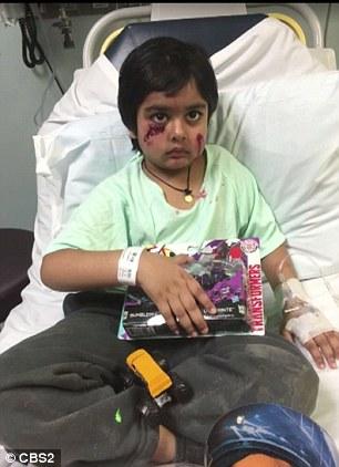 Як на 6-річного хлопчика напав скажений єнот  - фото 1