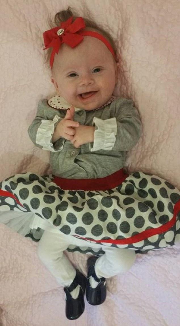 Фото немовляти з синдромом Дауна стало хітом соцмереж  - фото 4