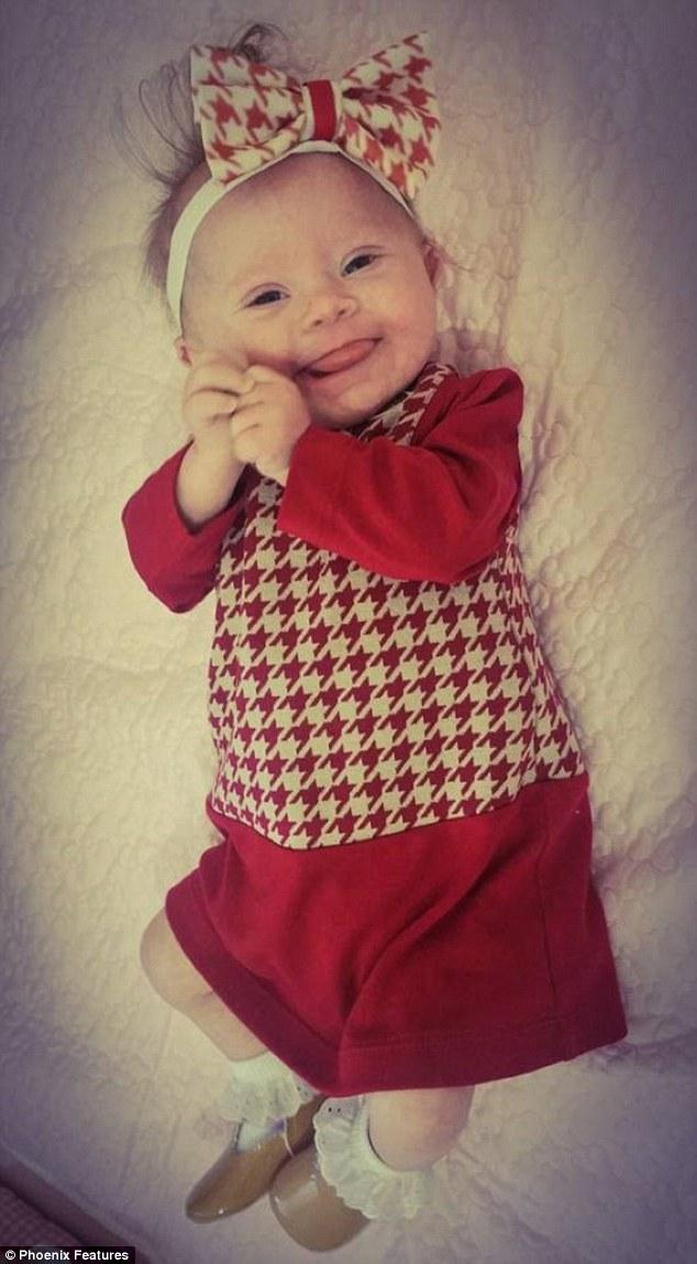 Фото немовляти з синдромом Дауна стало хітом соцмереж  - фото 3