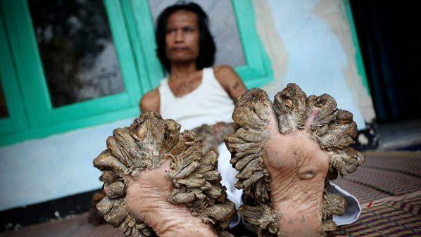 В Індонезії помер чоловік-дерево - фото 1