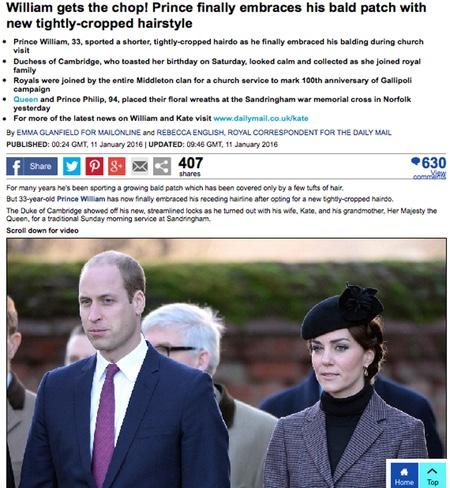 Принц Вільям показав свою лисину - фото 1