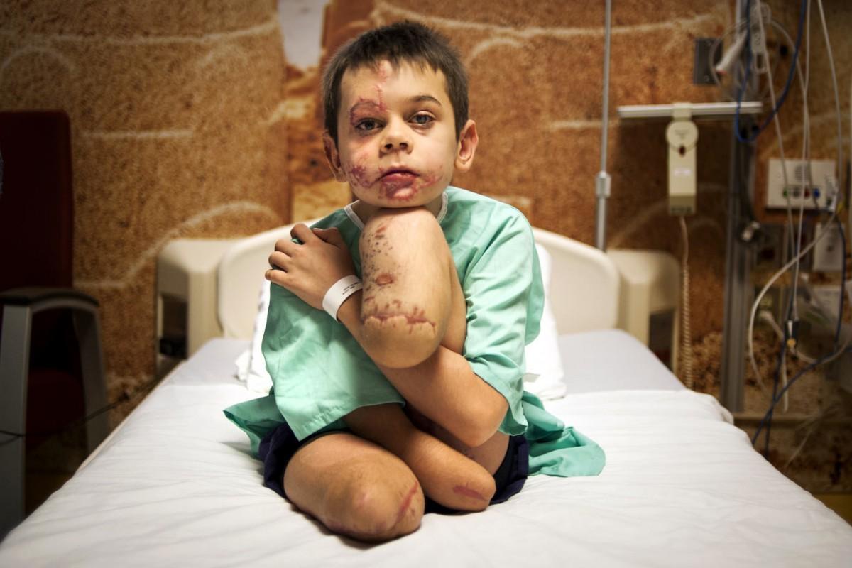 Фото хлопчика, який підірвався на Донбасі, перемогло у міжнародному конкурсі - фото 1