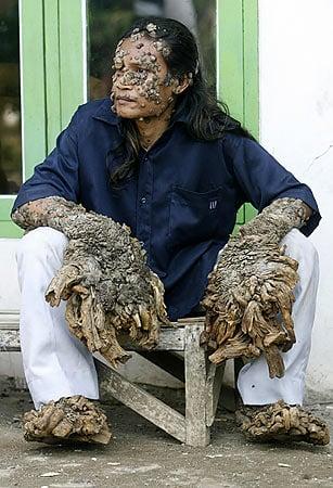 В Індонезії помер чоловік-дерево - фото 2