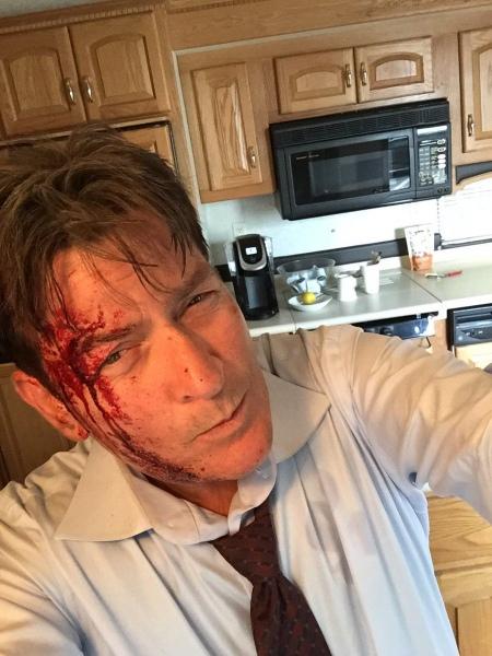 Чарлі Шин нажахав закривавленим обличчям після нещасного випадку  - фото 1