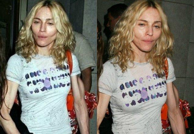 Фото, які зірки ненавидять: Мадонна з ботоксом та груди-втікачі Лоліти - фото 9