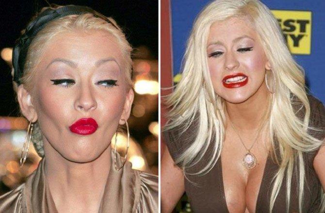 Фото, які зірки ненавидять: Мадонна з ботоксом та груди-втікачі Лоліти - фото 5