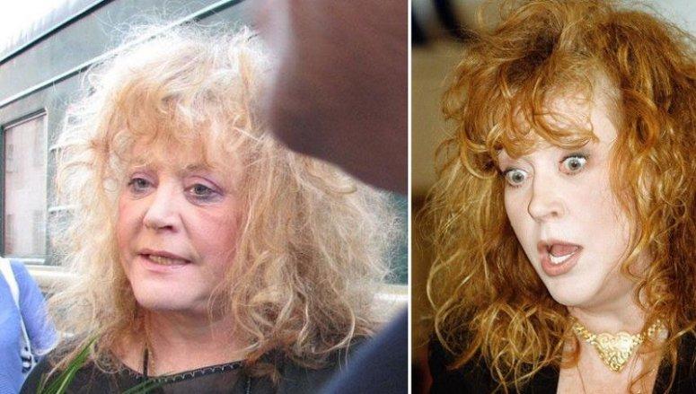 Фото, які зірки ненавидять: Мадонна з ботоксом та груди-втікачі Лоліти - фото 4