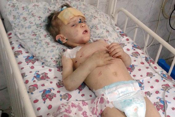 В Одесі знайшли побитого хлопчика, який нічого не пам'ятає - фото 1