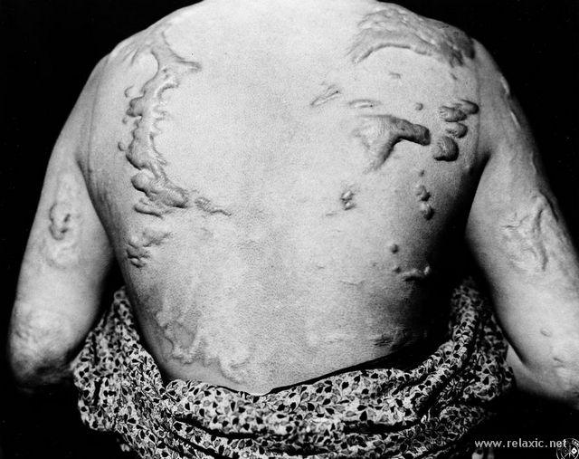Хіросима та Нагасакі: як бомбили Японію ядерною зброєю 71 рік назад - фото 3