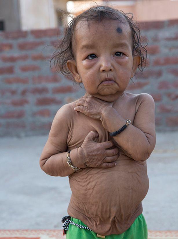 Як Бенджамін Баттон: в Індії двоє дітей через хворобу виглядають як старці  - фото 2