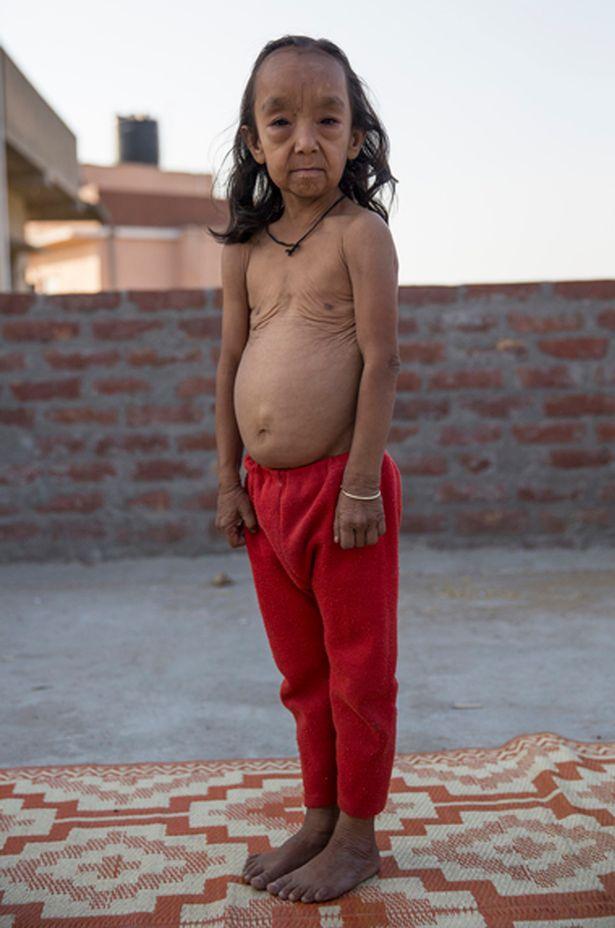 Як Бенджамін Баттон: в Індії двоє дітей через хворобу виглядають як старці  - фото 1