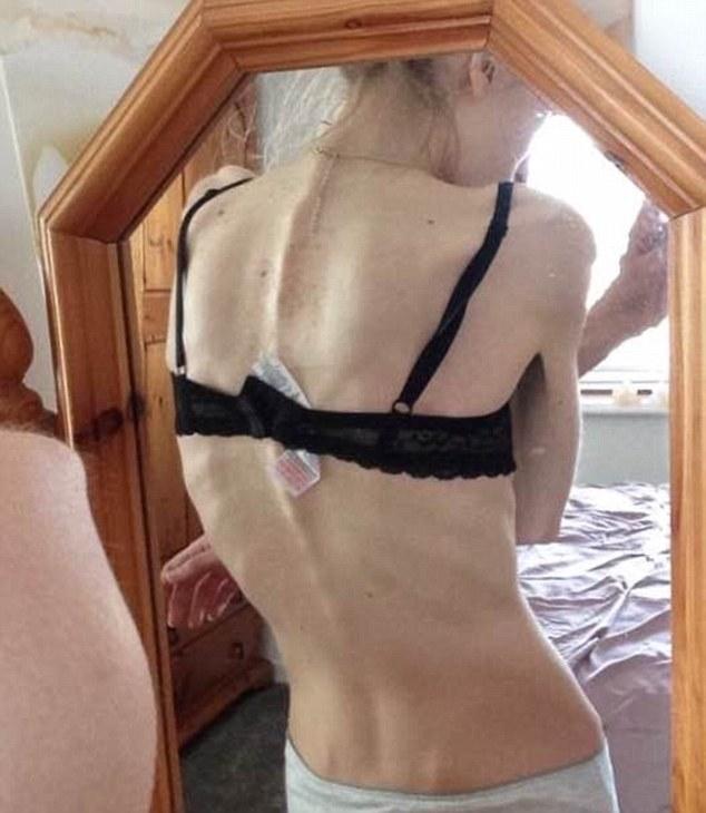 19-річна британка жахнула Інтернет висохлим від голодування тілом - фото 2
