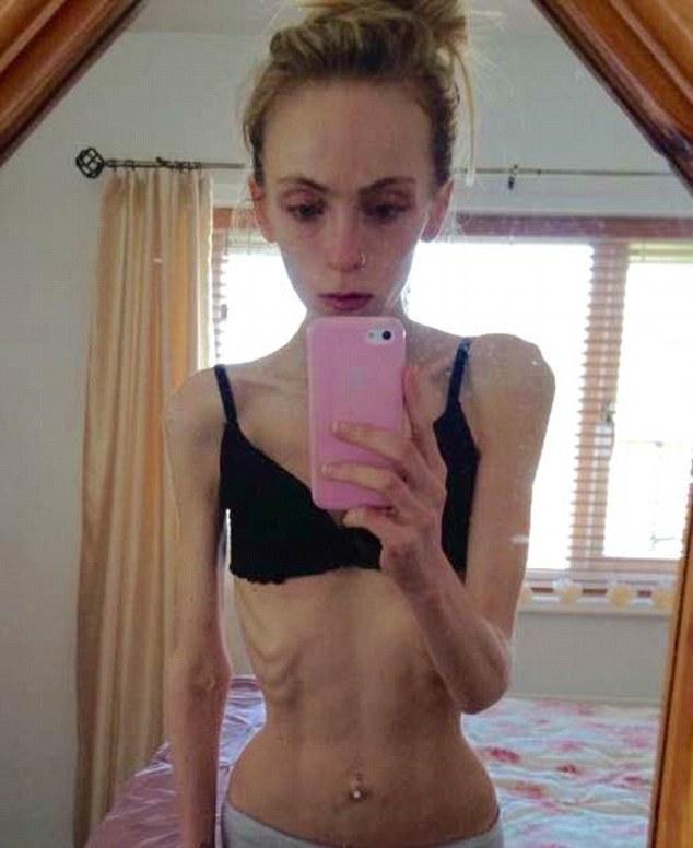 19-річна британка жахнула Інтернет висохлим від голодування тілом - фото 1