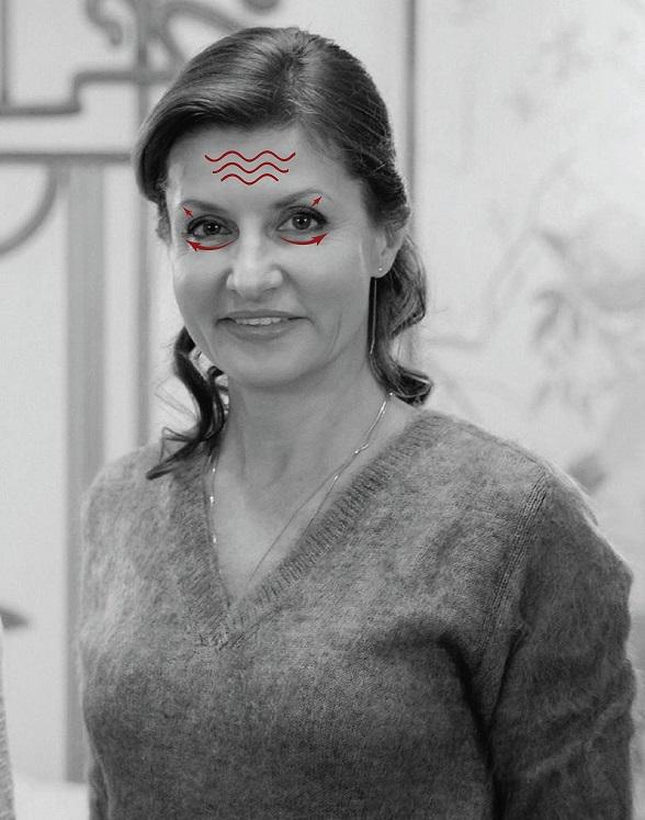 Пластичні хірурги розповіли про секрети краси Тимошенко, дружини Порошенко і Яценюка - фото 2