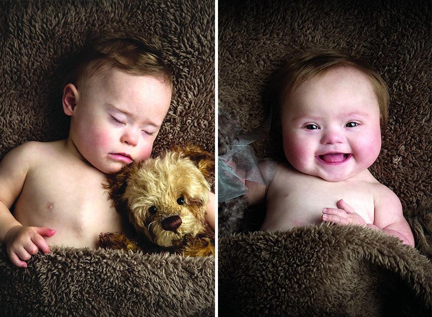 Календар дітей із синдромом Дауна та з оголеними акушерками підкорив інтернет  - фото 1