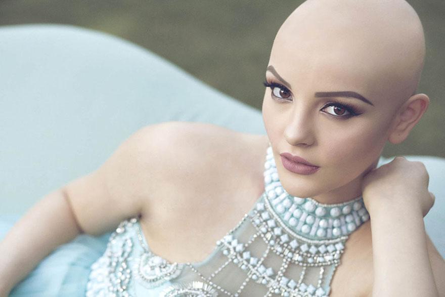 17-річна онкохвора модель розчулила мережу неймовірною фотосесією  - фото 2