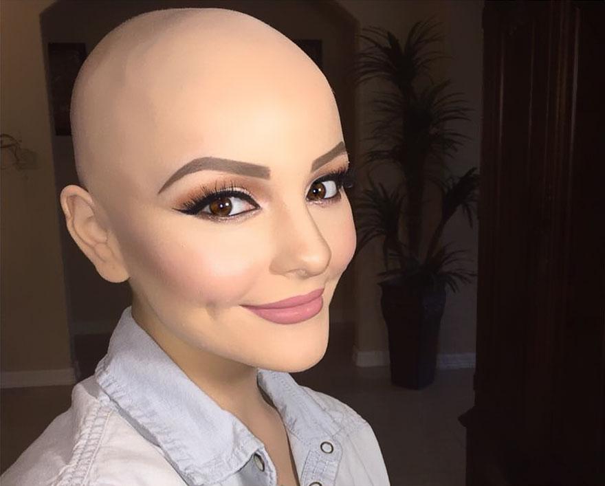 17-річна онкохвора модель розчулила мережу неймовірною фотосесією  - фото 5