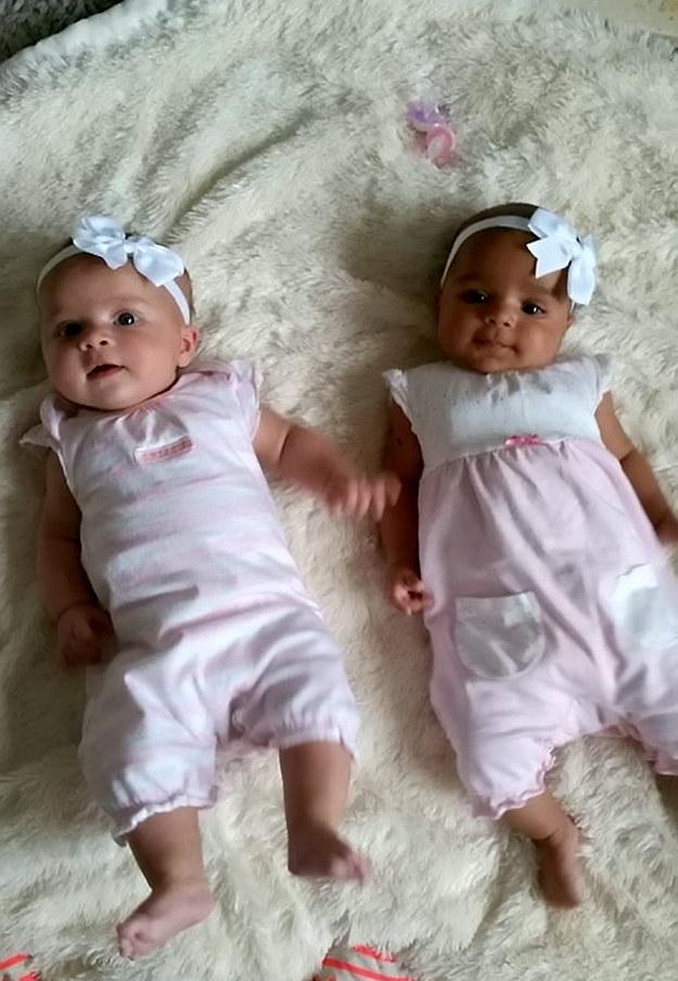 Жінка народила двійнят з різним кольором шкіри - фото 2