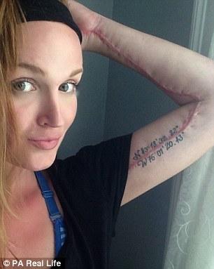 Американка у спортзалі підхопила паразита, який майже з'їв її руку - фото 3