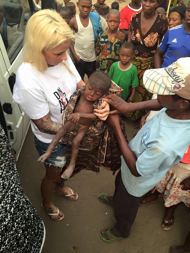 Зворушлива історія про малюка з Нігерії, який помирав від голоду, отримала своє продовження  - фото 2