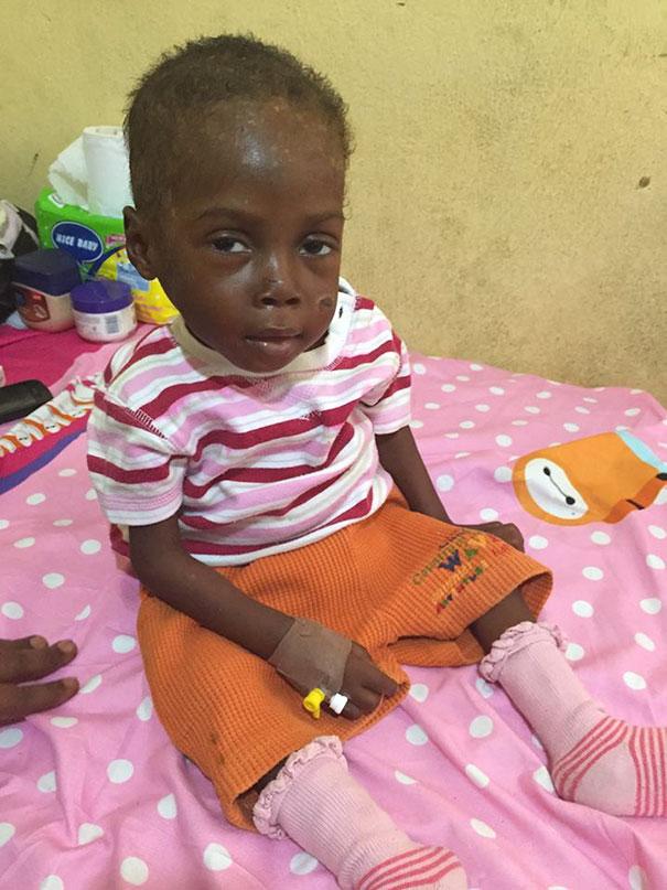 Зворушлива історія про малюка з Нігерії, який помирав від голоду, отримала своє продовження  - фото 7