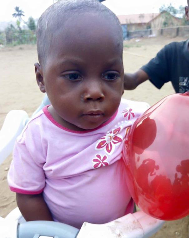 Як змінилося життя нігерійського малюка, який вмирав від дистрофії  - фото 3