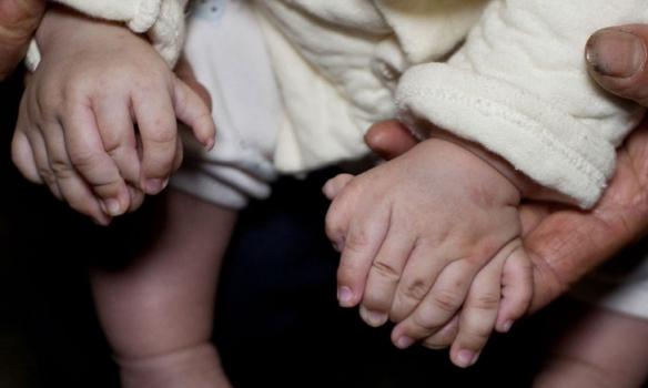 У Китаї народилася дитина з 31 пальцем - фото 1