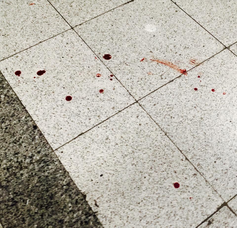 Українець розповів про теракт у Стамбулі, свідком якого він був - фото 3
