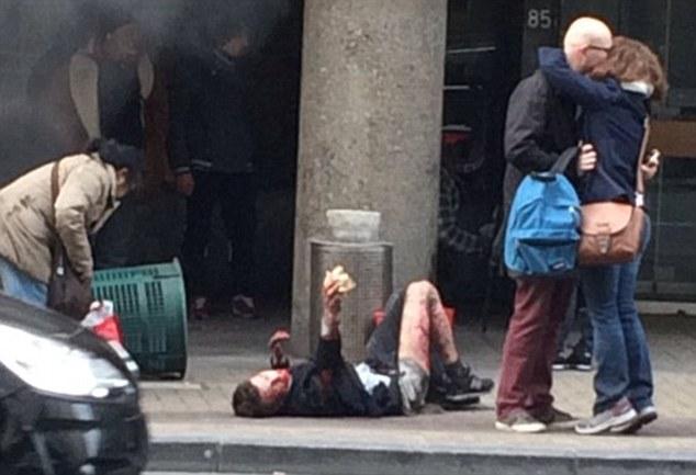 Як брюссельська пара цілувалася серед поранених - фото 1