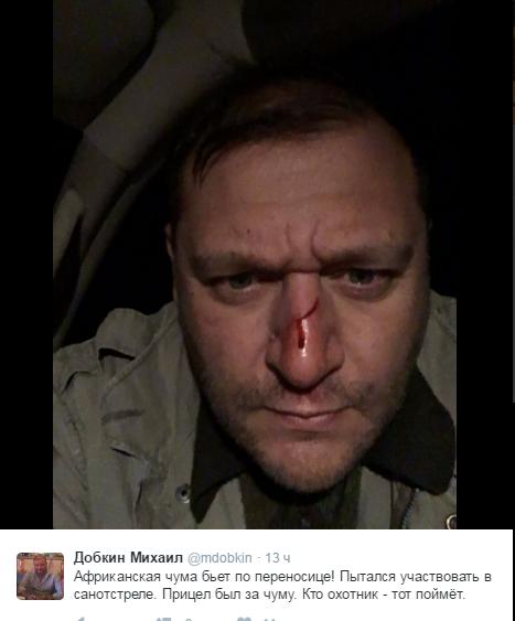 Добкіну на полюванні рушниця розбила ніс (ФОТО) - фото 1