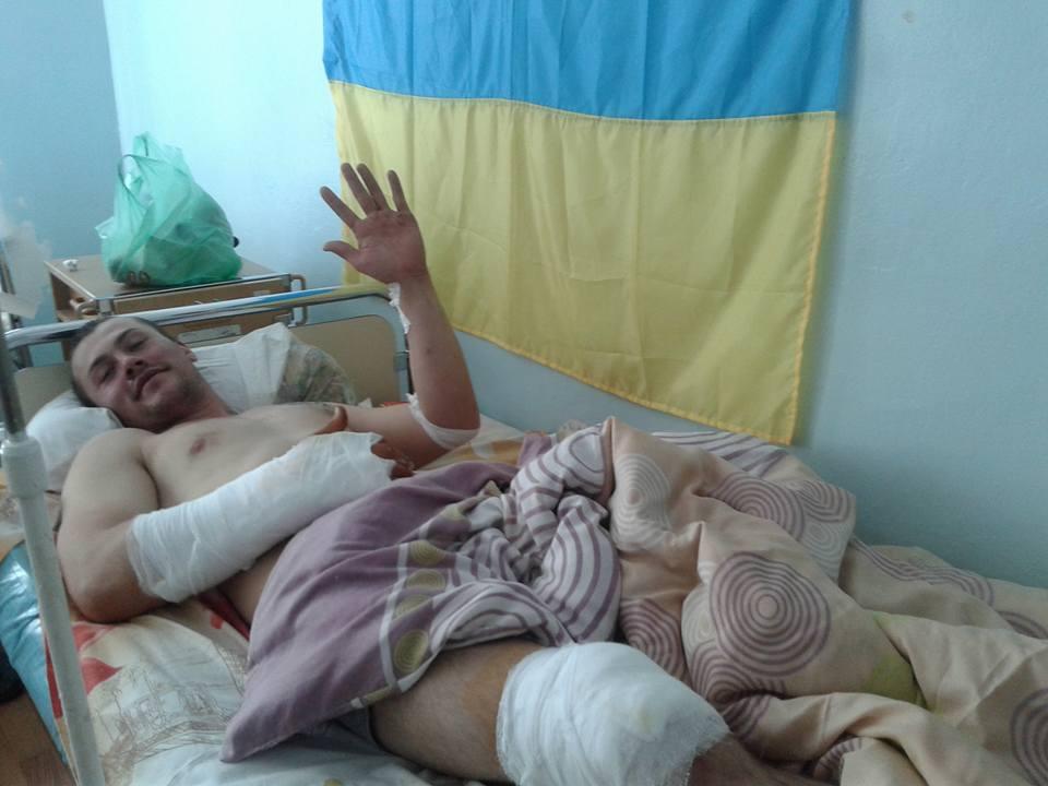 Потужний обстріл позицій ЗСУ під Маріуполем: у шпиталі багато поранених (ФОТО) - фото 4
