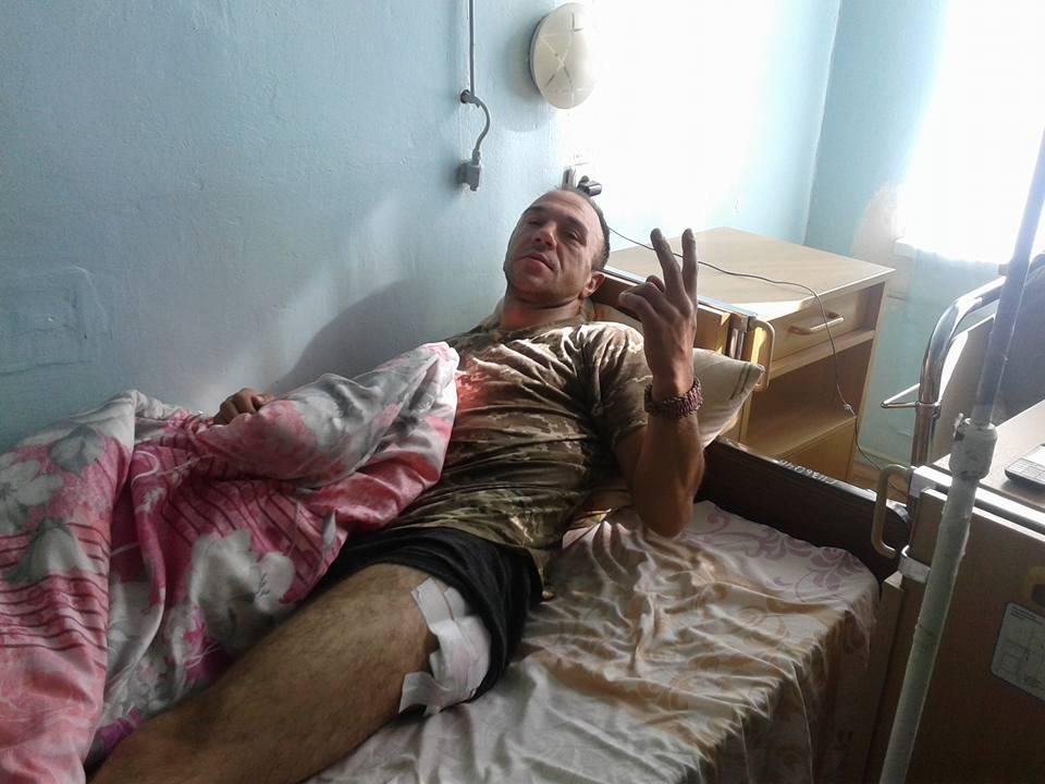 Потужний обстріл позицій ЗСУ під Маріуполем: у шпиталі багато поранених (ФОТО) - фото 3