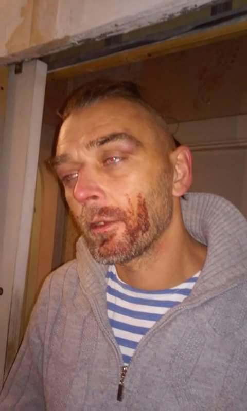 Миколаївські волонтери заявили про побиття патрульними АТОшника
