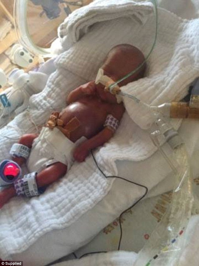 Австралійка народила дитину вагою 500 грамів - фото 2