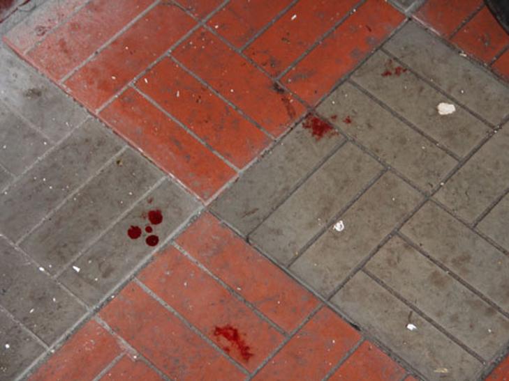 На Чернігівшині в натовпі людей вибухнула граната - фото 2