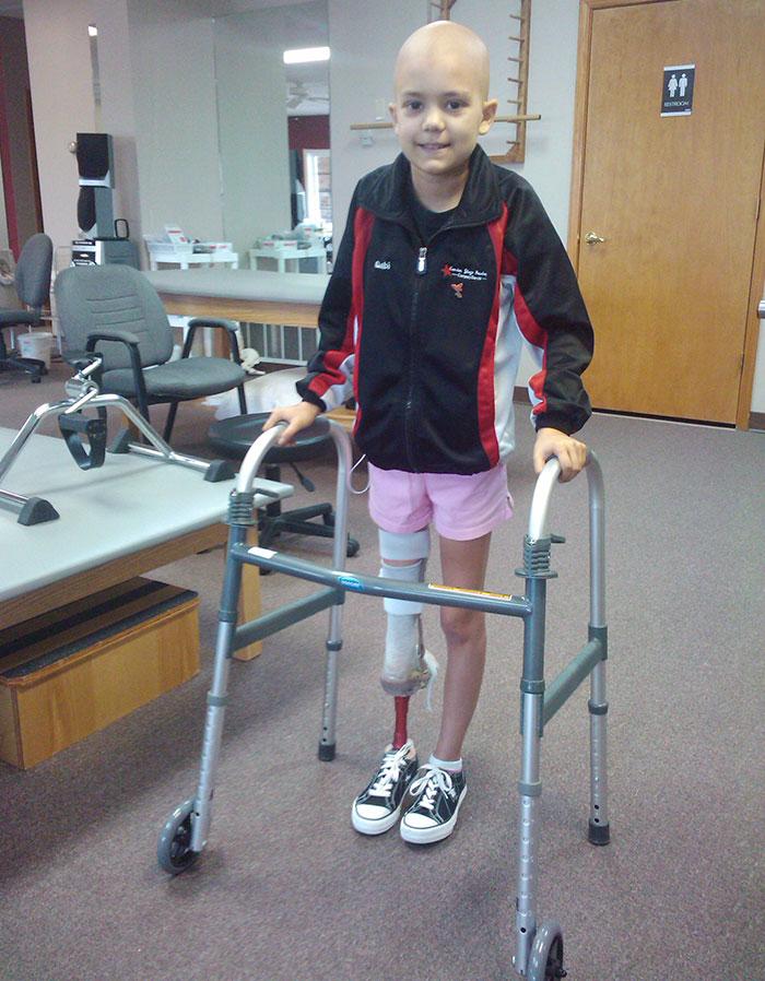 15-річна балерина, яка втратила ногу через рак, знову встала на пуанти  - фото 1