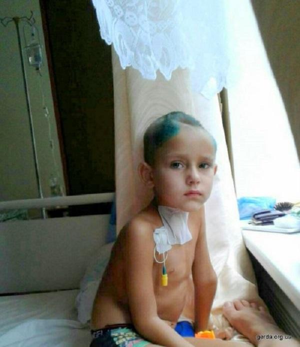У Жовтих Водах постраждалий від косарки хлопчик потребує важкої операції - фото 1
