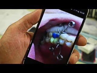 Як стоматологи в зоні АТО видирають зуби російській пропаганді - фото 7