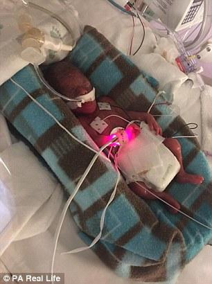 У США народилося дитинча вагою 28 грамів - фото 1