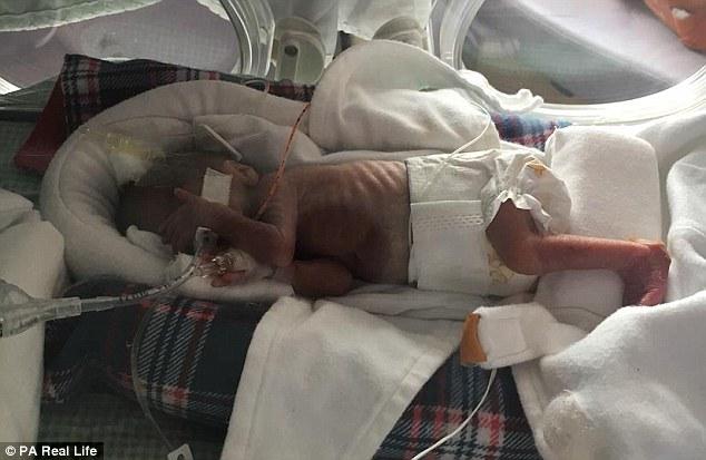 У США народилося дитинча вагою 28 грамів - фото 2