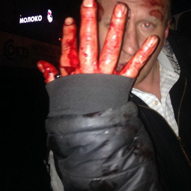 У Харкові п'яний чоловік побився з громадським транспортом (ФОТО) - фото 2