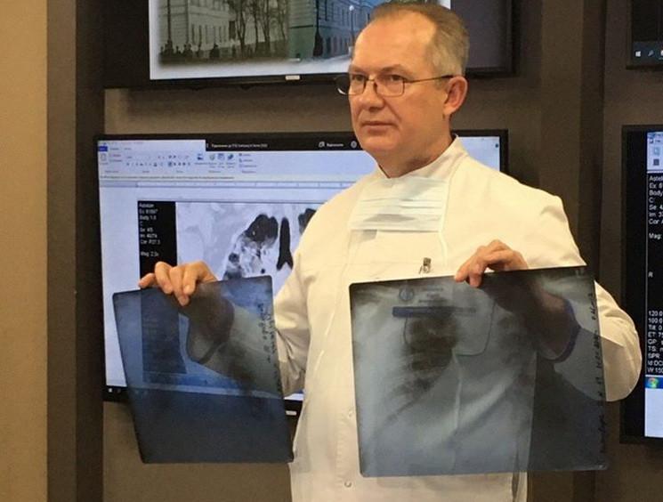 У лікарні Дніпра від пневмонії, викликан…