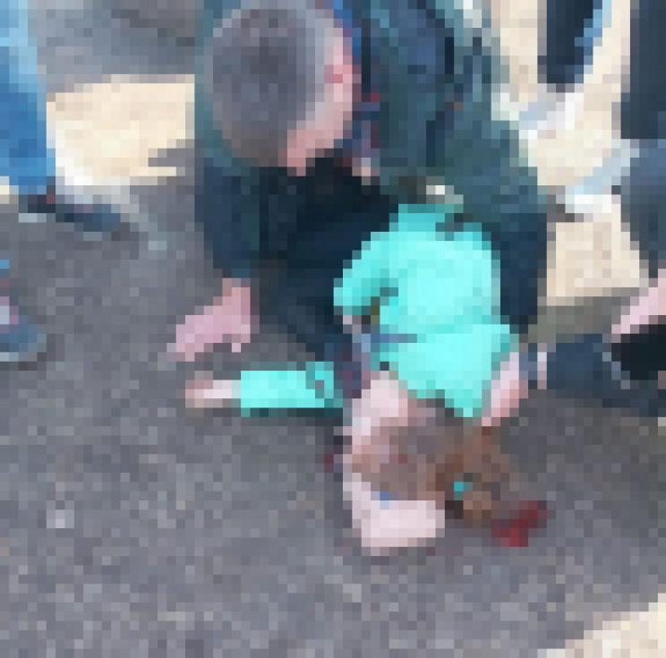 У запорізькому парку дитину прибило дере…